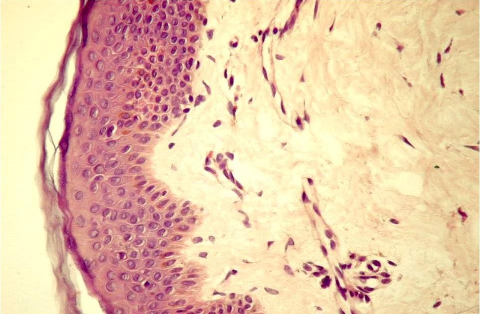 preparate pentru elasticitatea țesutului conjunctiv serul bolii articulare