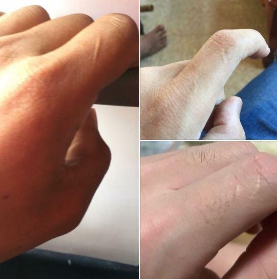 dacă articulația de pe degetul arătător doare