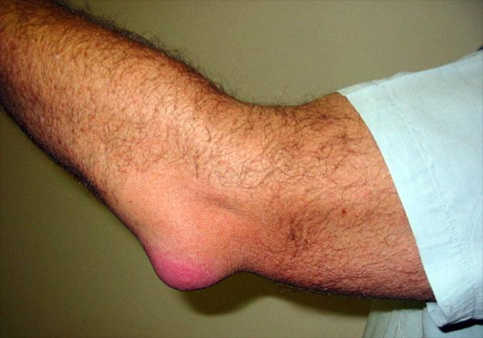 Bursita cotului: fotografii, simptome și tratament