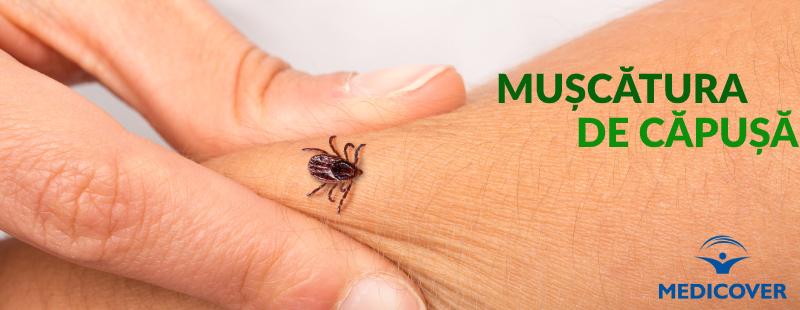 Dureri articulare după o mușcătură de insectă. Navigare principală