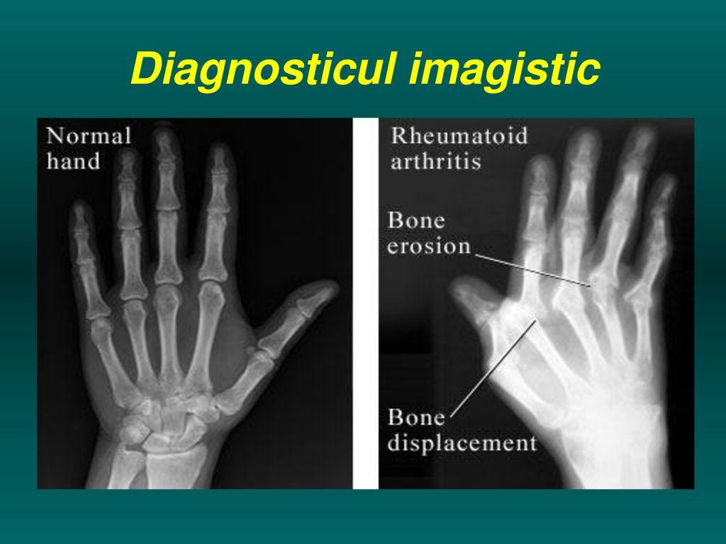 radiografie a articulațiilor în artrita reumatoidă)