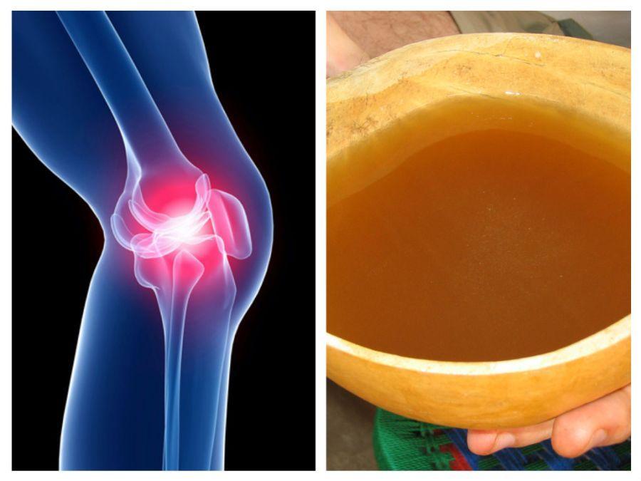 când articulațiile doare și oasele leziuni la genunchi