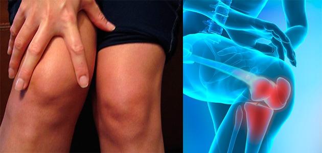 de ce articulațiile genunchiului rănesc tratamentul)