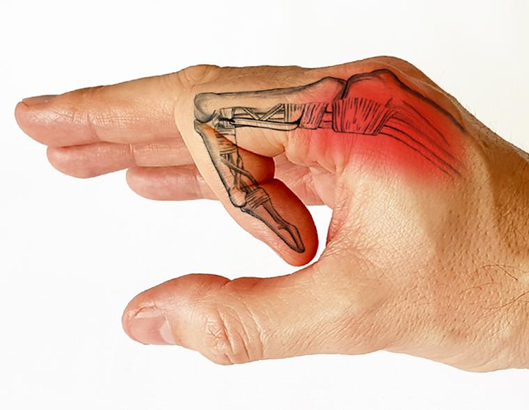de ce durează articulația din deget)