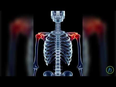 vârf unguent pentru dureri articulare tratamentul osteoartrozei articulației genunchiului stâng