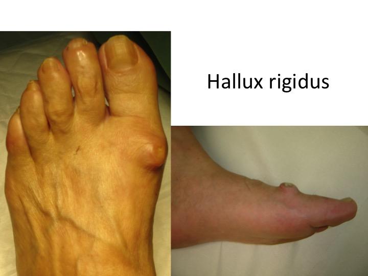 deformarea durerii articulației piciorului din care rosturile apar la rândul lor