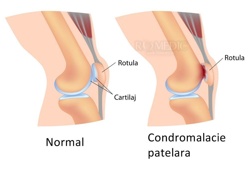 deteriorarea ligamentelor articulației genunchiului drept
