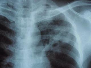 unguent pentru durere în articulații cu artroză