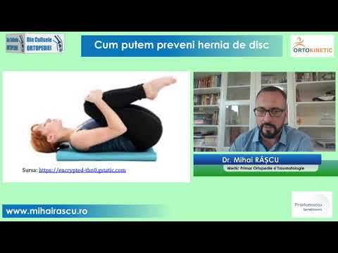 Preparat de articulație din elastenga)
