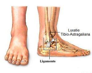 dislocarea tratamentului articulației gleznei