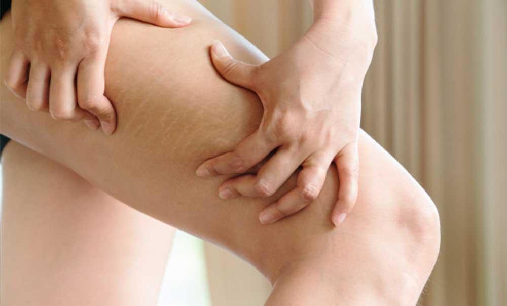 displazie de țesut conjunctiv în tratamentul adolescenților
