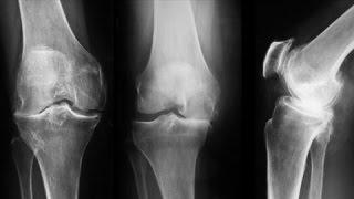 ce se întâmplă când artroza genunchiului articulațiile în mâna rănite