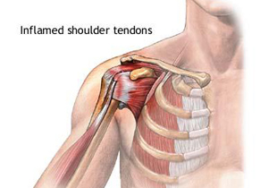 dureri la nivelul articulațiilor umărului și coapsei căci durerea în articulația umărului poate provoca