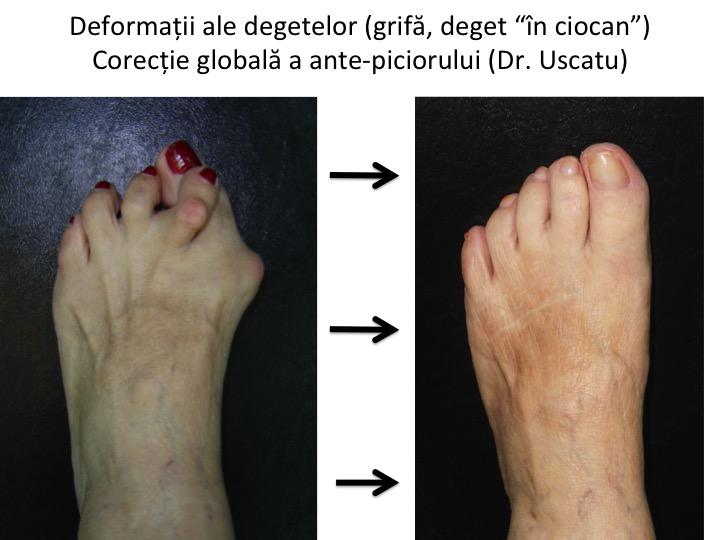 durere mică a articulației degetelor de la picioare)