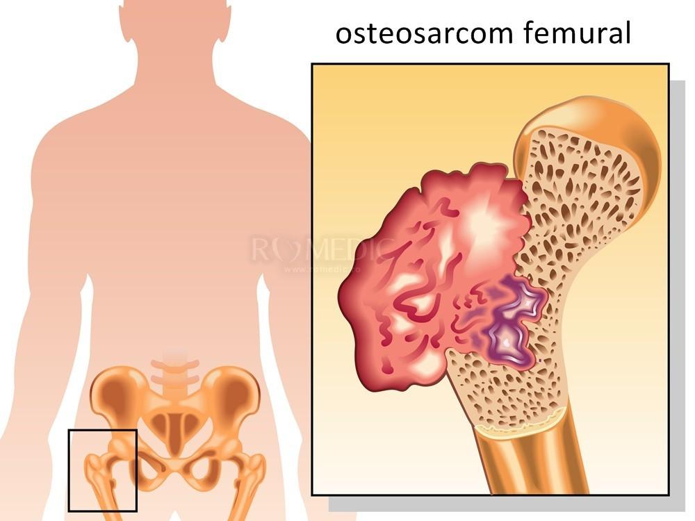 dureri articulare cu tratament HB