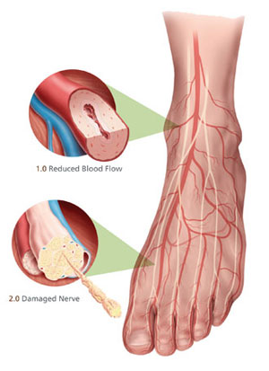 dureri articulare cu polineuropatie
