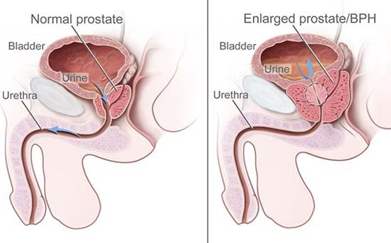 dureri articulare de cancer de prostată)