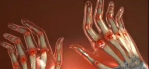 dureri articulare în palmele mâinilor