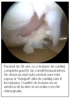 refacerea cartilajului în articulația genunchiului