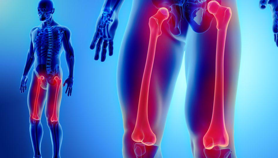 Durere la nivelul piciorului după înlocuirea șoldului, Jurul stângului la în