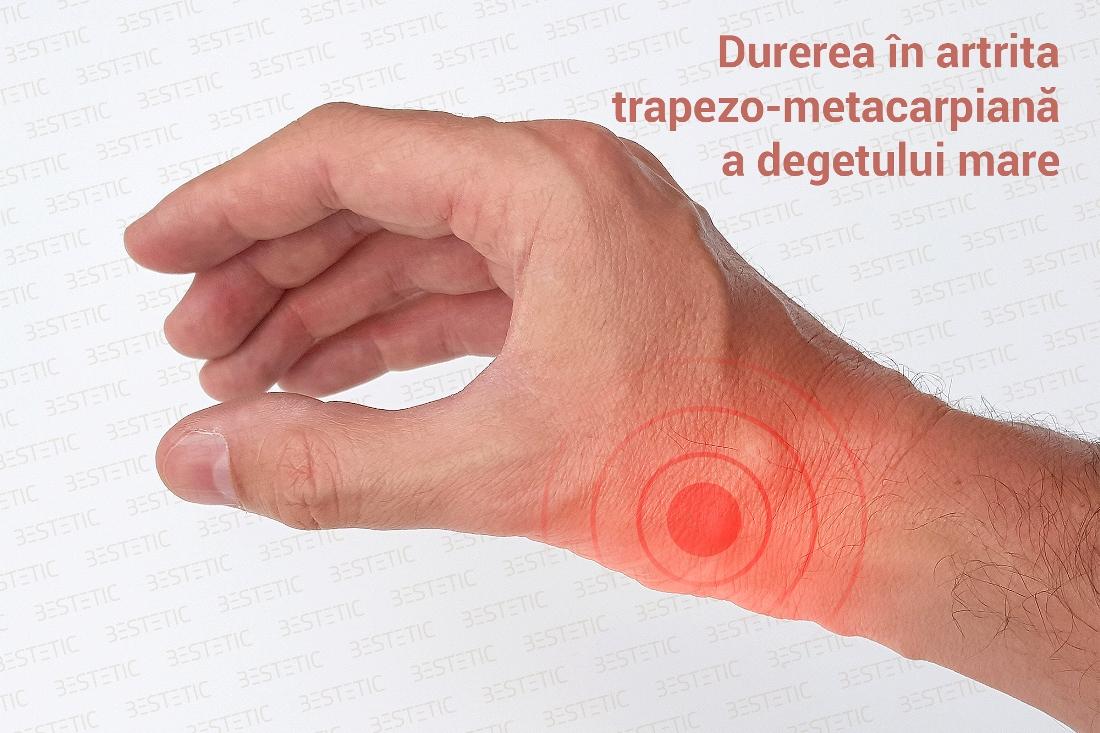 Articulațiile în mâna rănite, Poliartrita reumatoida