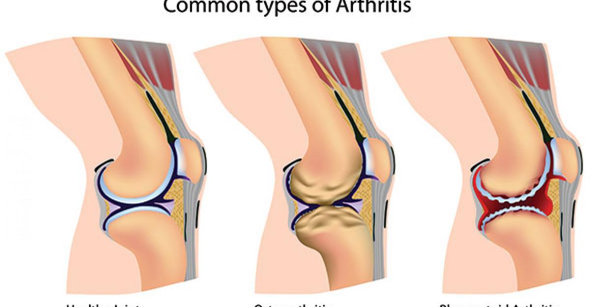 boala genunchiului