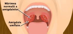 dureri articulare amigdalite