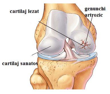 refacerea țesutului cartilaginos al articulației genunchiului)