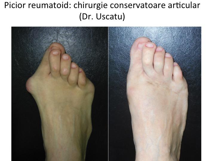 tratamentul artritei artritei piciorului)