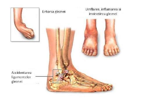 inflamația nervului în articulația gleznei)