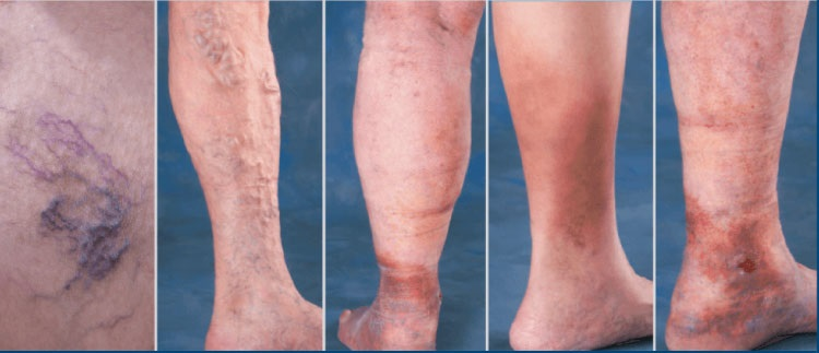 Boala articulațiilor membrelor, Tratamentul artrozei hipnozei