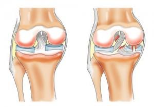 cât de mult doare articulația cu guta