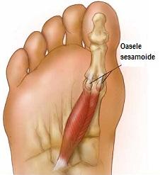 durere în degetul mare al piciorului drept)