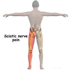 dureri de șold și amorțeală a piciorului