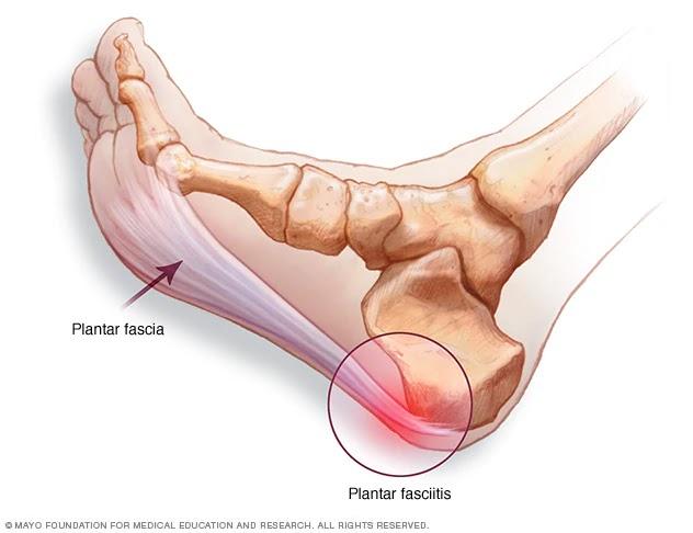 Articulație sub călcâie doare