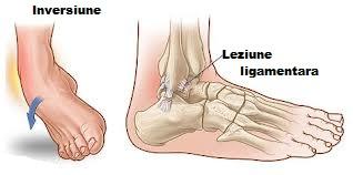 cum să tratezi articulațiile bolnave ale genunchiului dureri articulare la săptămâna 36