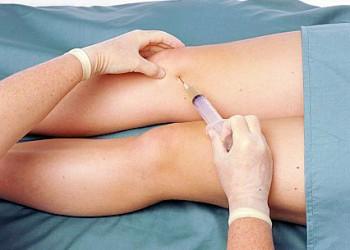 inflamația lichidului sinovial al genunchiului)