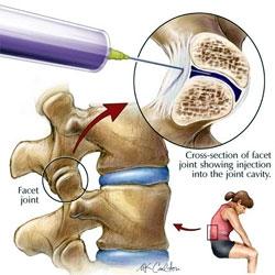 dureri articulare după injectare
