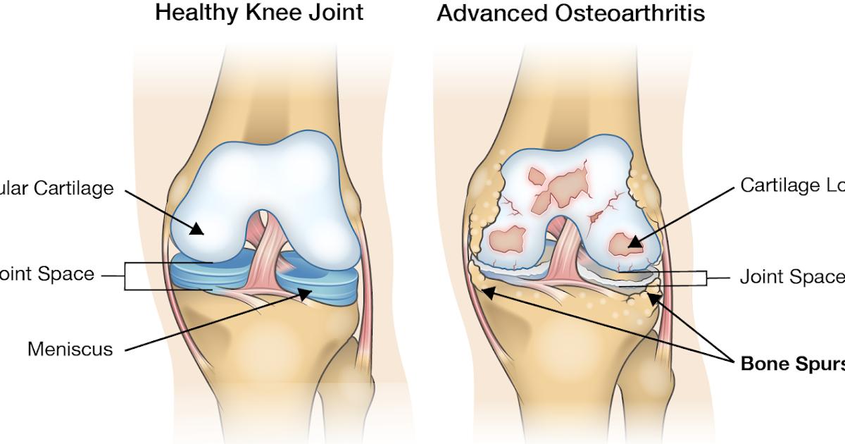 artroza patellofemorală a tratamentului articulației genunchiului 2 grade