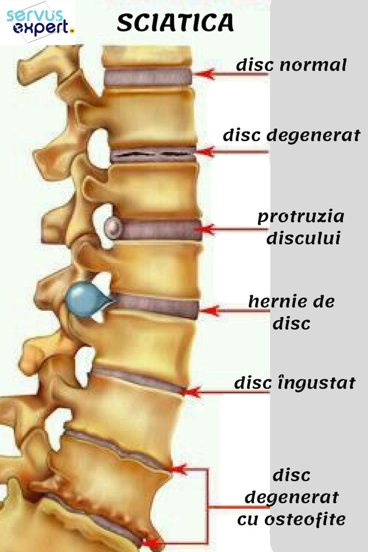 Articulațiile brațelor și picioarelor și ale coloanei vertebrale