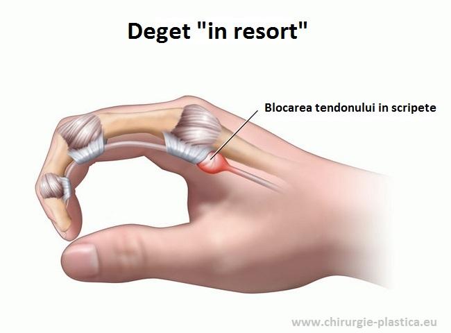 durere în articulația degetului inelar