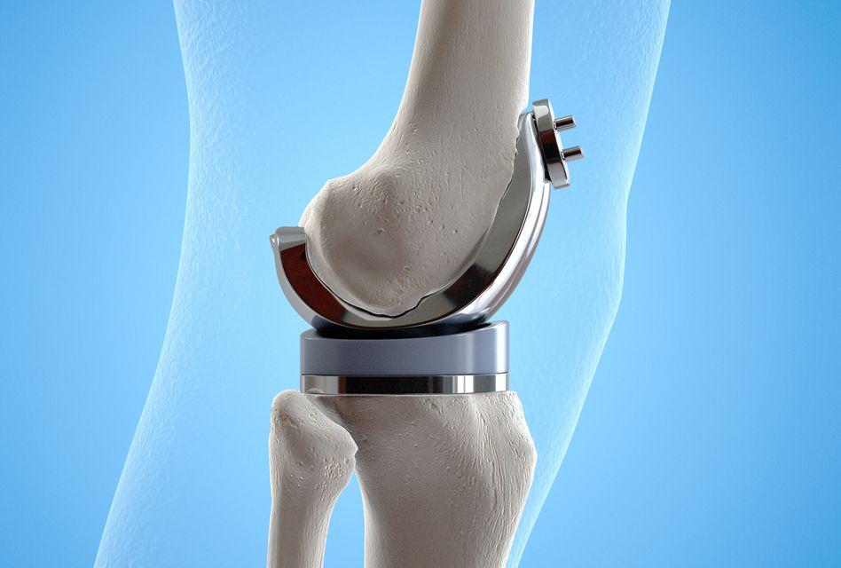Proteza de Genunchi (Înlocuirea Articulaţiei de Genunchi)