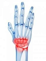 cum să alinați durerea acută de articulații