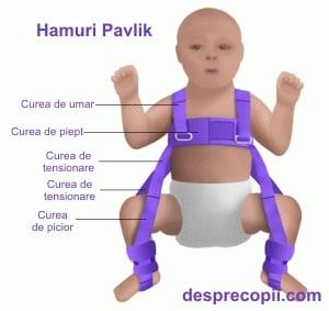Displazia de șold la nou-născuți | Ottobock RO