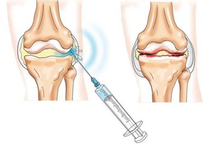 utilizarea de phosterosteron pentru tratamentul genunchiului)