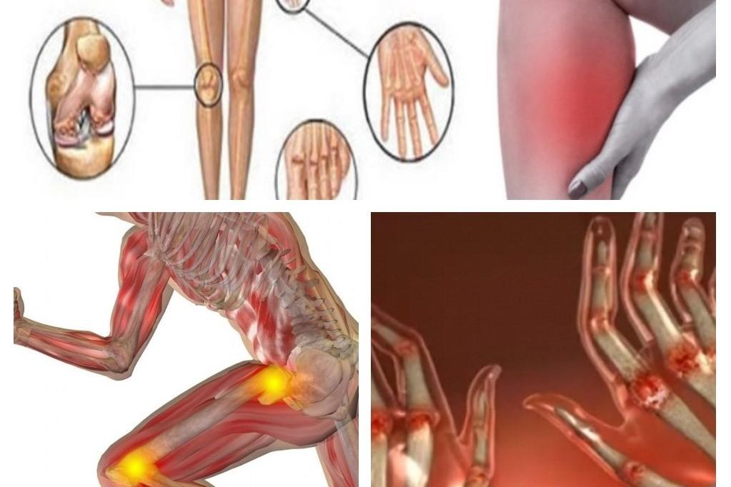 semne de artrită și modul de tratament)