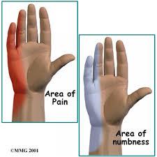durere ascuțită a articulației degetului mare)