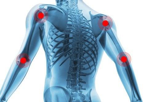 Curcuma și miere pentru dureri articulare - Doza de Sănătate