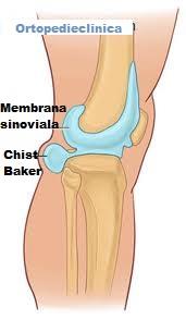Articulația genunchiului s-a topit,