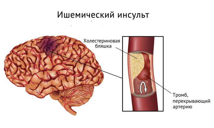 unguente pentru articulații după un accident vascular cerebral)